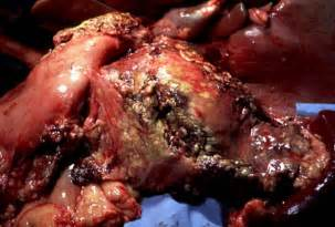 liver cancer stage 4 metastasizing picture 19