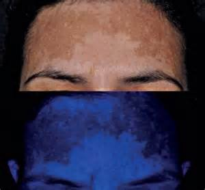 melasma yeast infection picture 22
