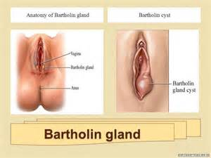 how to treat a red bartholin gland with picture 3