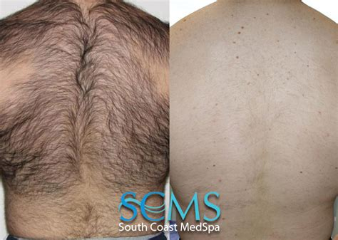 back hair removal picture 1