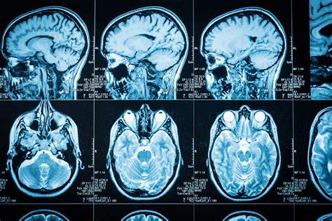 prognosis of insomnia picture 3