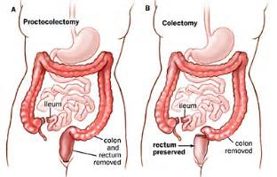 colon cancer surgery view picture 3