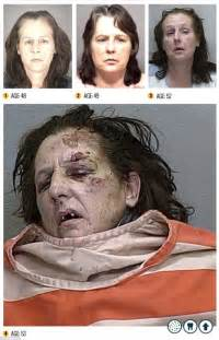 meth mouth aging effects picture 7