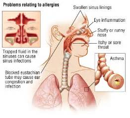 how can allergic reactions to amoxicillin manifest? picture 2