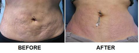 stretch mark removal az picture 2