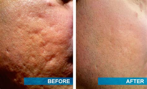 acne scarring treatment picture 1