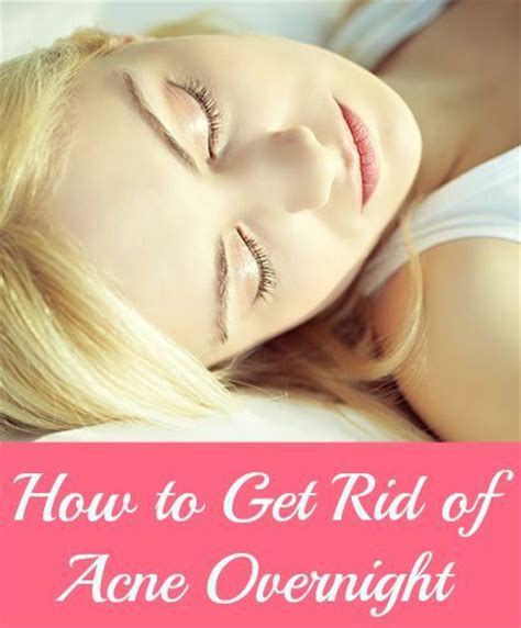 how to get rid of zits and acne picture 2
