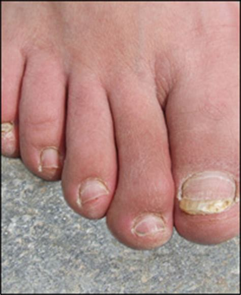 pin pointe foot laser in oklahoma picture 9