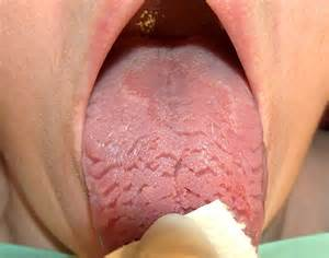 free close up pics of enlarged penis heads picture 1