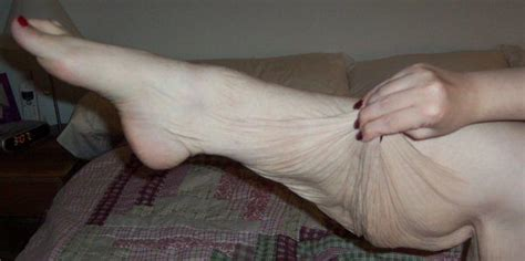 flabby legs after weight loss picture 15
