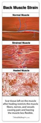 Herbal remedies for scar tissue buildup in elbow picture 10