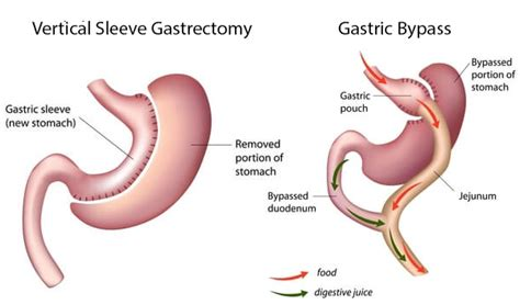 will gastric byp work if you are weight loss resistant picture 6