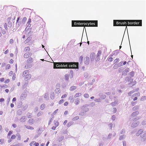 fat cells in the sigmoid colon picture 1
