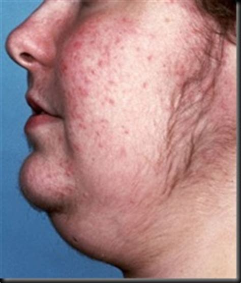 cushing's syndrome and boils acne picture 11