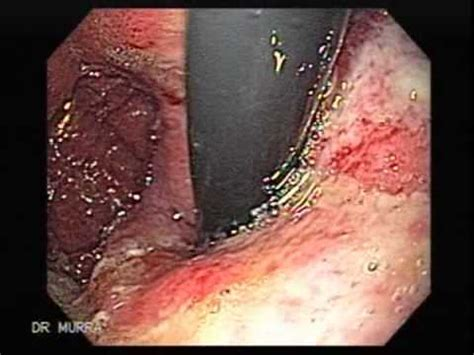 dahilan sintomas ng colon cancer picture 9