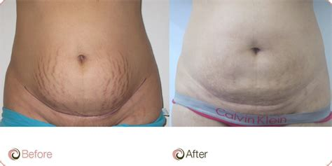 surgery's to remove stretch marks picture 10