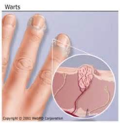 how to remove warts picture 7