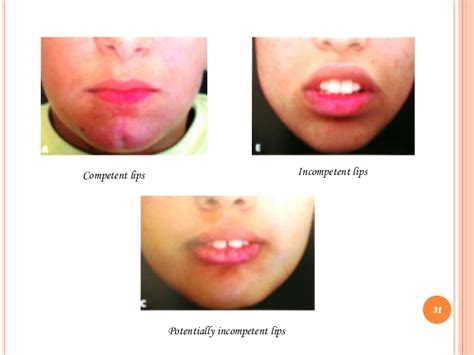 what causes crooked lips picture 10