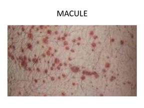 skin macules picture 3