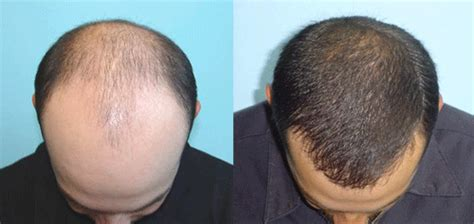 hair loss laser treatment picture 3