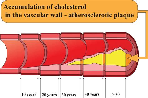 Cholesterol veins picture 7