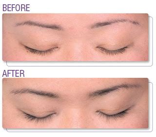 eyelash growth serum shoppers drug mart picture 3