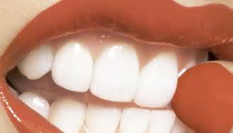 cost to whiten teeth picture 9