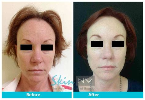 is sculptra good for acne scaring picture 26