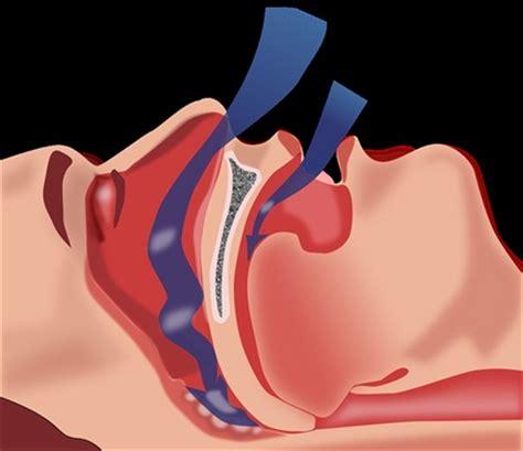 can sleep apnea be start of chronic beryllium picture 11