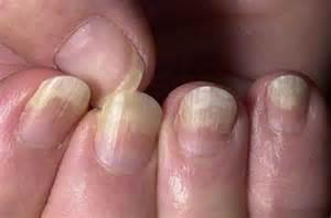 toenail fungus copper picture 9