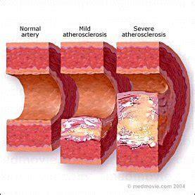 types of probiotics picture 9