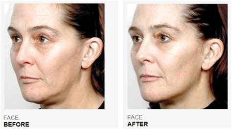 tripollar pose before and after picture 3