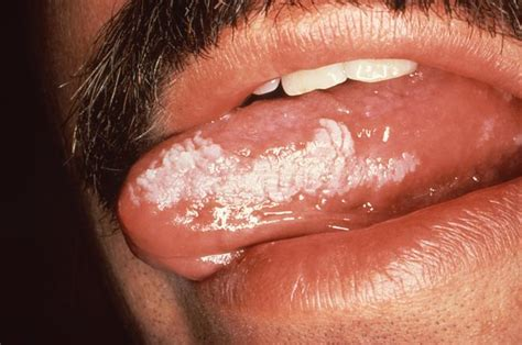 chewing tobacco and herpes picture 9