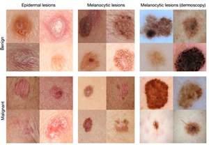 dermatologist skin tumors picture 11