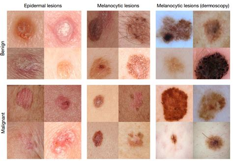 pictures of skin cancer lesions picture 2