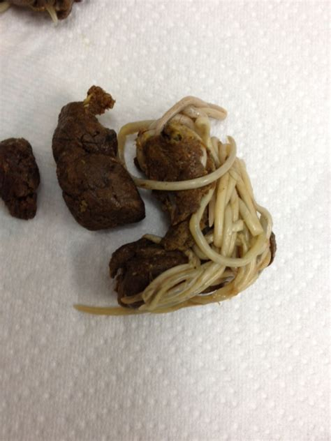 clean out gastrointestinal parasites picture 18