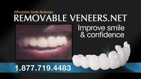 cheapest snap on veneers online picture 3