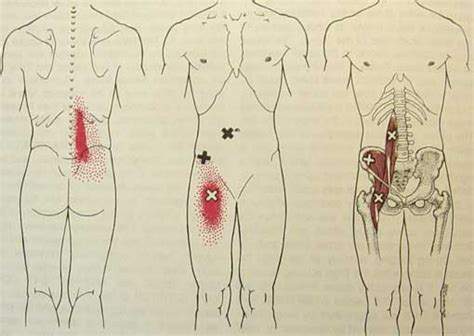 chronic hip muscle pain picture 1