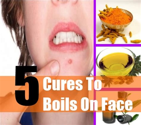 boils on the face picture 10