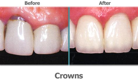 crowns for teeth picture 17