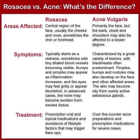 acne rosacea red frace treatment picture 1
