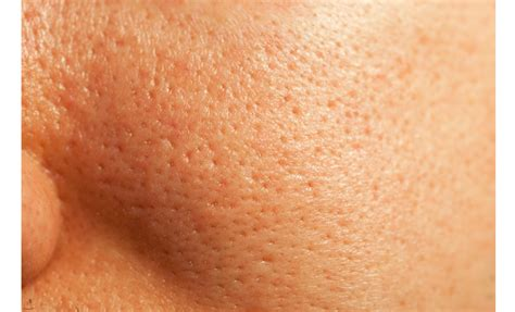 microdermabrasion for acne scars picture 17