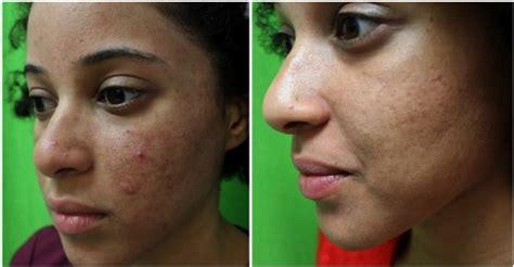 internal treatment for acne dr bilques picture 12