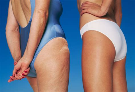 myth: tanning can hide cellulite picture 3