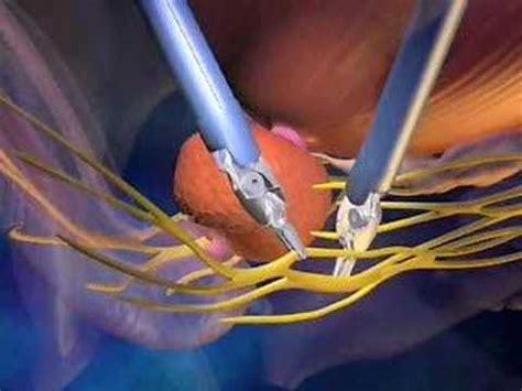 Da vinci prostate cancer florida picture 1