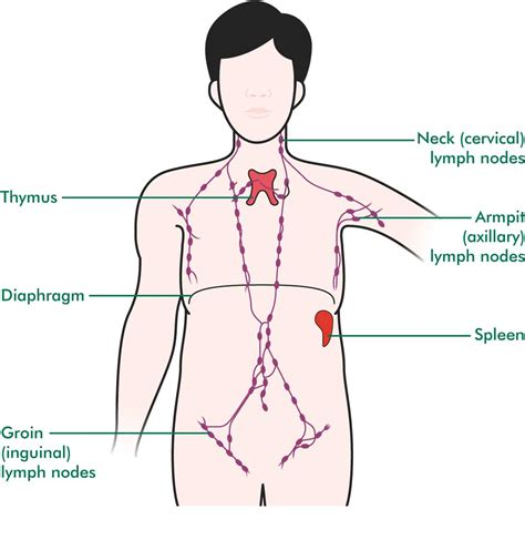can hashimoto's thyroiditis cause swelling axillary lymph nodes picture 3