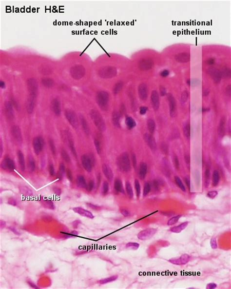 epithelial changes in the bladder picture 9