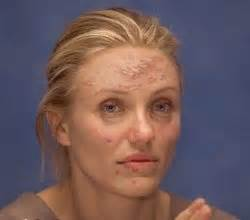 famous actresses thart had acne picture 1