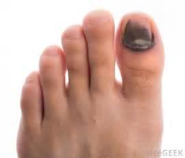 toenails picture 7