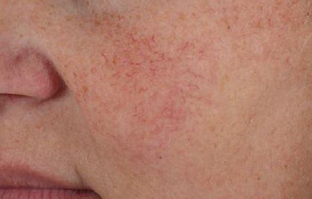 cuperose skin problem picture 5